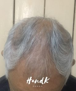 Before using Hands Hair Revitalizer