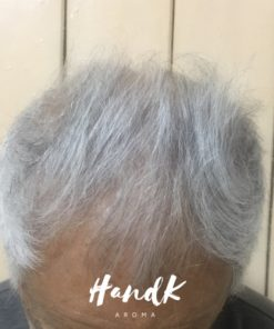 After using Hands Hair Revitalizer for 3 months